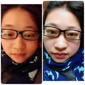 2015 。:腫了(右白天;左晚上)